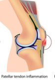 Patellar Tendonitis is one of the common causes of knee pain below the kneecap