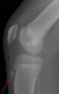 Osgood schlatters Disease is on of the most common causes of knee pain in teenager