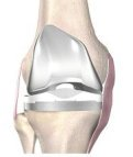 Everything you need to know about knee replacements