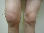 Swelling is a common problem with knee pain.  The location and severity of the swelling helps to make an accurate knee pain diagnosis