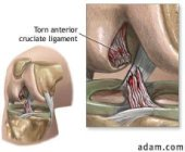 ACL knee injury