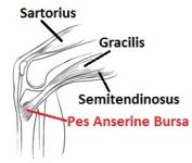 Pes Anserine is one of the less common causes of knee pain.  It causes pain on the inner side of the knee, below the joint