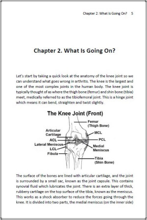Interior view from our new knee arthritis book available in paperback and Ebook.  Knee Arthritis: Take Back Control