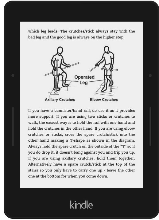 Our new knee arthritis book is available in paperback or for instant download on your Kindle.  Knee Arthritis: Take Back Control