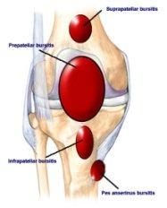 The locations of the knee bursa