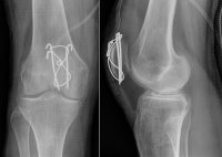 X-ray showing fixation of a broken patella