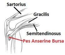 The Pes Anserine Bursa sits underneath the conjoined tendon of sartorius, gracilis and semitendinosus.