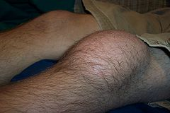 Housemaids knee causing pain and swelling at the front of the knee