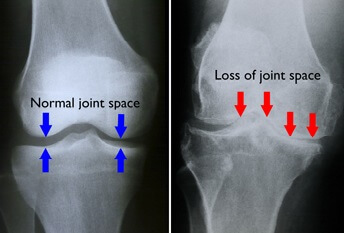 X-ray of arthritis in the knee compared to a normal knee joint.  Note the loss of joint space