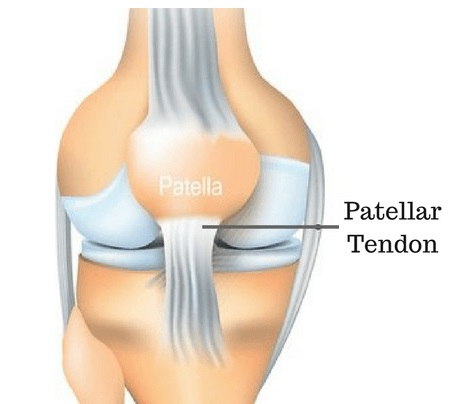 The kneecap is a common place to experience knee pain
