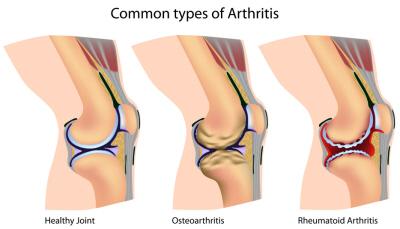There are two types of arthritis in the knee: osteoarthritis and rheumatoid arthritis