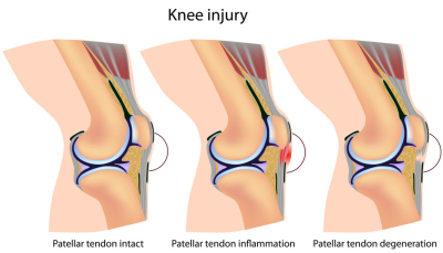 Patellar Tendonitis develops when there is excessive force on the tendon causing irritatio