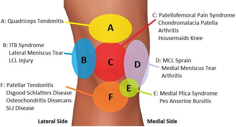 Anterior Knee Pain Diagnosis Chart. This knee pain injury chart helps you to work out what is causing your front knee pain.