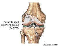 The knee following ACL Reconstruction Surgery