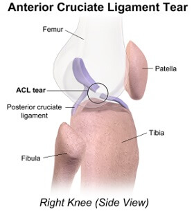 Side on view of an ACL knee injury