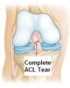 ACL injuries can cause knee instability.  An ACL knee brace can help improve instability, reduce pain and protect from further injury.