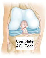 Ligament tears are a common cause of knee swelling.