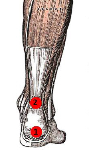 Achilles tendonitis can occur in different parts of the tendon, both causing calf pain