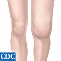 Arthritis is a common cause of a swollen knee