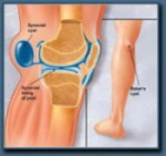 Bursitis commonly causes a swollen knee.