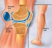 Bakers Cyst causes knee pain when bending as the inflammed bursa gets squashed behind the knee