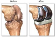 With severe knee osteoarthritis, often the best course of action is a knee replacement