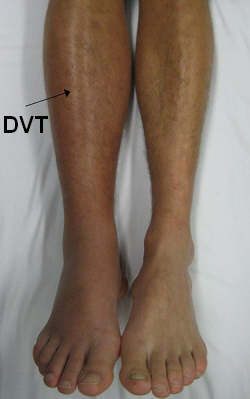DVT's usually present with pain, swelling, redness and warmth in the calf region
