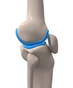 Knee cartilage lines the femur and tibia allowing the knee to move smoothly and painlessly.
