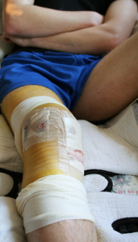 Some swelling, bruising and pain after ACL surgery is to be expected