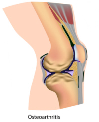 Diagram showing arthritis in the knee
