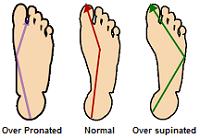 Foot biomechanics.