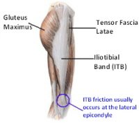 Iliotibial Band Syndrome is a common causes of lateral knee pain, especially with runners.