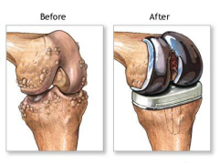 Total knee joint replacement involves removing the worn parts of the joint and replacing them.