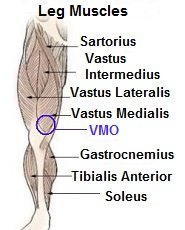 The VMO knee cap muscles are extremely important for controlling how the patella moves