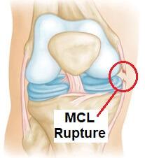 MCL Tear: Symptoms, Diagnosis & Treatment