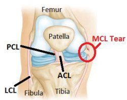 Diagram of the knee ligaments showing a complete MCL tear (medial collateral ligament)