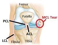 Medial Knee Pain Pain On The Inner Side Of The Knee