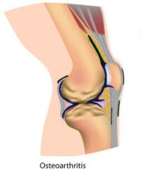 Osteoarthritis is often accompanied by morning stiffness in the knee