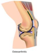 Arthritis pain in the knee