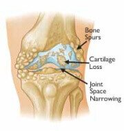 Osteoarthritis causes pain and stiffness when bending the knee