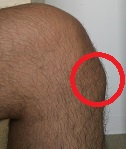 A lump below the kneecap often indicates Osgood Schlatter Disease. Image source https://en.wikipedia.org/wiki/Osgood%E2%80%93Schlatter_disease#/media/File:MaleWithOsgoodSchlatter.jpg