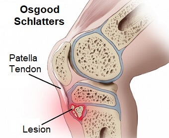 Osgood Schlatter Disease: Find out all about the common causes, symptoms, diagnosis and treatment of this common cause of knee pain