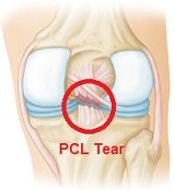 A PCL injury - you can see there is a full thickness tear of the posterior cruciate ligament shown from the back of the knee