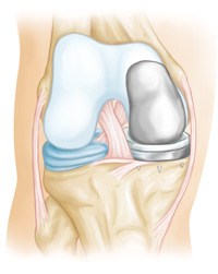 Partial knee replacements are used when arthritis is confined to one side of the joint