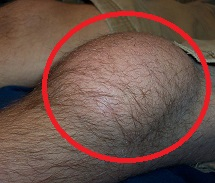 Housemaids knee causes anterior knee pain and swelling