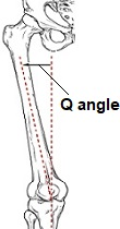 The normal Q angle for men is 13 degrees  and 18 degrees for women. A Q angle greater than 20 degrees can lead to knee problems such as patellar dislocation