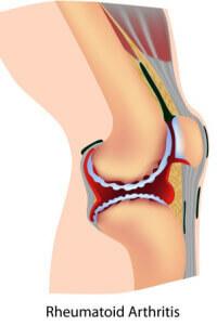 Rheumatoid arthritis in the knee will cause stiffness