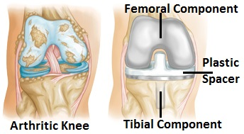 Total knee replacement surgery involves removing the worn part of the knee and replacing it with a metal and plastic prosthesis