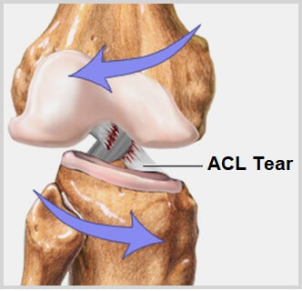 ACL Knee Injury - causes, symptoms, diagnosis and treatment