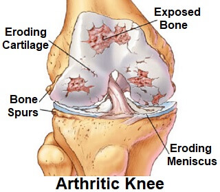 Knee Arthritis Treatment: Find the best ones for you